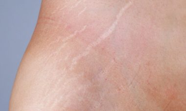 Penyebab Stretch Mark Pada Wanita By Andrew Hidayat KPK